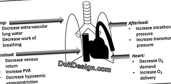 Distributed mechanical ventilation, what is it?